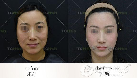 面部线雕真人案例杭州时光整形