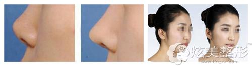 安阳苏莱美注射玻尿酸塑形效果