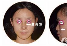 宽鼻梁、鼻基底低逆转颜值的秘诀是在广州华美做鼻综合吗