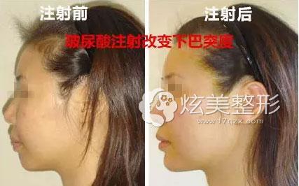 深圳美莱梁宇辉专家注射玻尿酸隆下巴案例