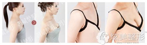 冯斌专家自体脂肪隆胸案例