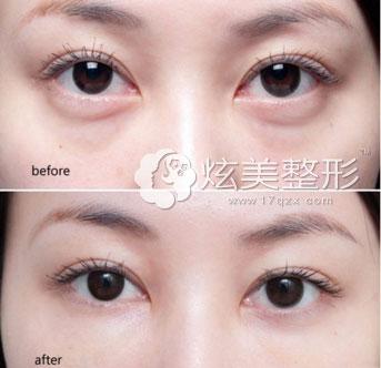 武汉美立方韩式无痕祛眼袋案例