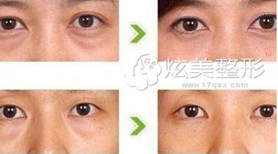 武汉美莱内路径手术祛眼袋案例