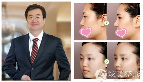擅长隆鼻的东方整形专家郑东学