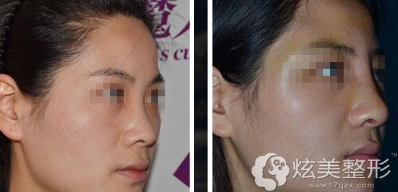 西安美立方:鼻综合整形更自然案例