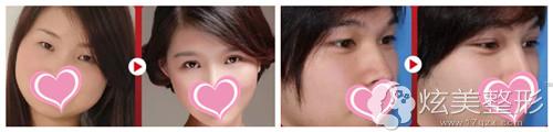 高清华专家韩式微创双眼皮案例