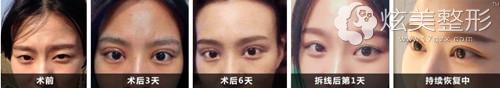 刘广志专家双眼皮真人案例