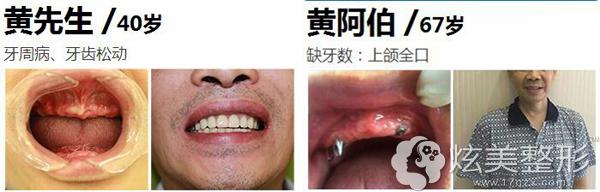 广州拜博种植牙案例