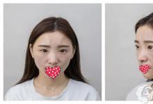 塌鼻妹在重庆时光花30分钟做线雕隆鼻 效果堪比假体隆鼻