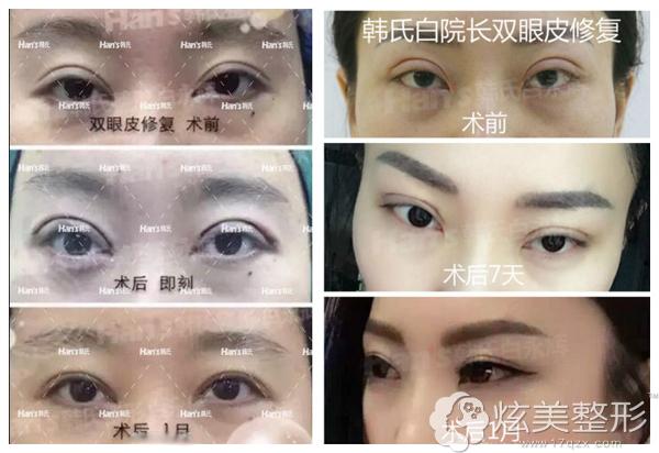 白永辉医生双眼皮失败修复案例