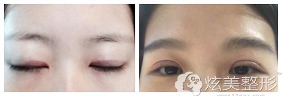 全切双眼皮术后睁眼无力肉条明显