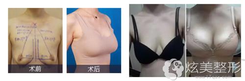 深圳美莱整形隆胸案例