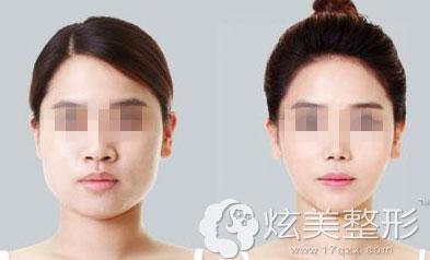 蚌埠美莱坞瘦脸针真人案例