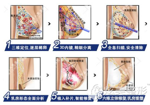 在广州荔湾人民医院清奥技术