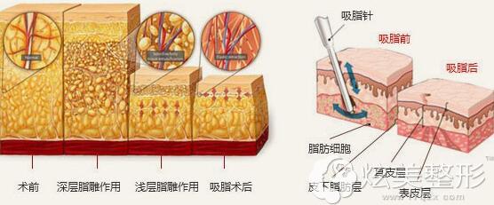 360°环形立体吸脂手术原理