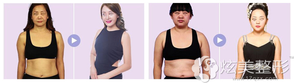 南昌佳美吸脂减肥前后对比