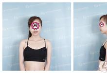 宝妈1个月告别扁平垂 只因在南宁东方做了妙桃假体丰胸术