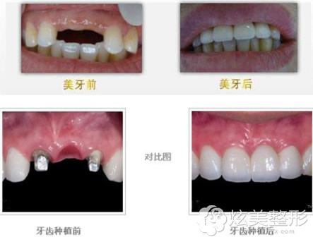 北京海德堡口腔医院种植牙齿案例