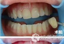 武汉冠美口腔医院做牙齿冷光美白有效果吗?能医保报销吗