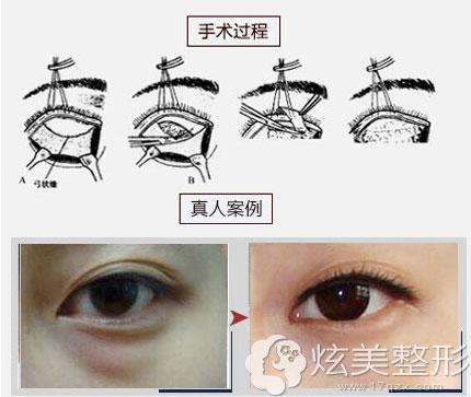 大韩眶膈脂肪释放法祛眼袋