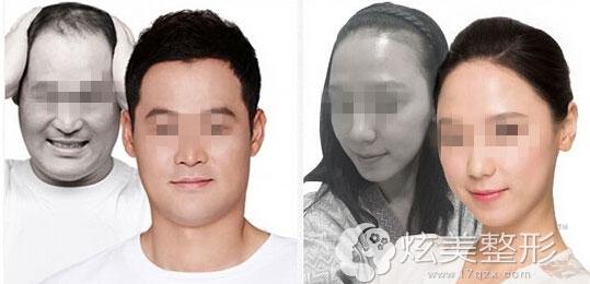 植发真人案例北京博士园植发