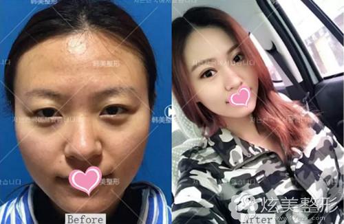 陈丹丹专家双眼皮案例