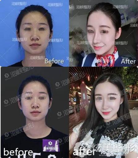 鼻综合术前术后对比案例