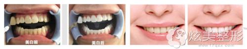 宁波牙博士美白牙齿案例