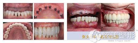 牙博士种植牙齿案例