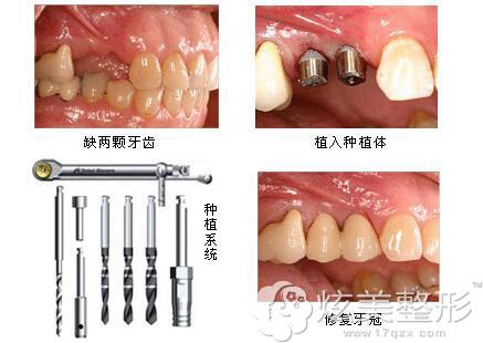 赖红昌种植牙案例