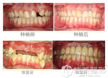 拜博口腔医院数字化种植牙齿案例