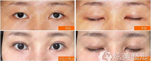 韩勋医生双眼皮失败修复案例