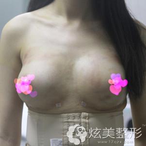 刚做完手术胸部明显变大
