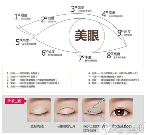 Park法翘睫双眼皮术原理