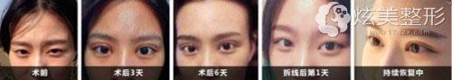 济宁名美双眼皮案例