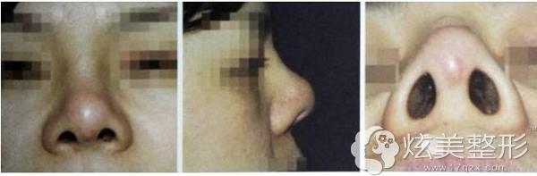 产生挛缩变形的鼻子