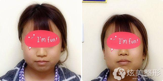 面部轮廓整形术前面诊