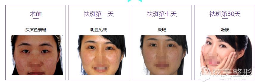 中山爱思特瘦脸针+双眼皮案例