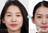 上海首尔丽格5月整形优惠大放送 做下颌角整形立减1040元