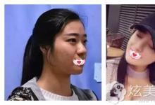 分享我在惠州瑞芙臣做鼻综合1个月成功蜕变翘鼻全过程