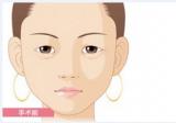 绵阳朗睿双眼皮+去眼袋多少钱?刘峰主任给出暑期价目表