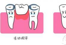 半口牙缺失怎么办?武汉冠美口腔说可选种植牙提前看价格