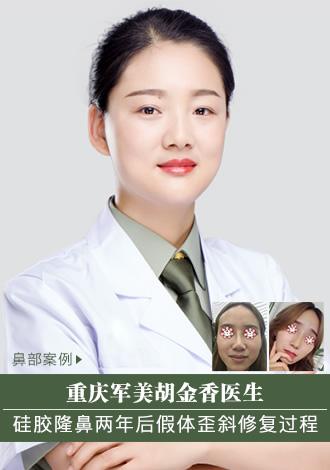 硅胶隆鼻两年后假体歪斜找重庆军美胡金香医生修复过程