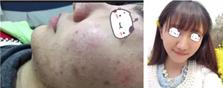 北京空军总医院富秋涛帮痘龄8年的妹子彻底摆脱烂痘脸