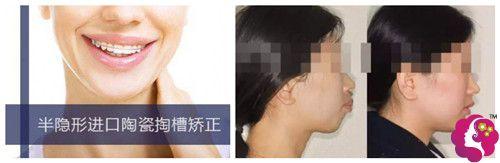 众牙口腔陶瓷矫正牙齿案例