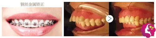 众牙口腔钢丝金属矫正牙齿案例