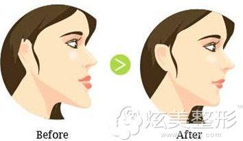牙齿矫正有助于微调面部轮廓