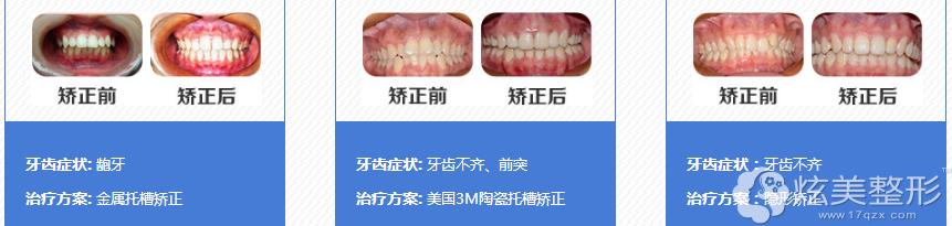 深圳拜博牙齿矫正案例