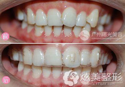 广州曙光整形医院牙齿矫正案例