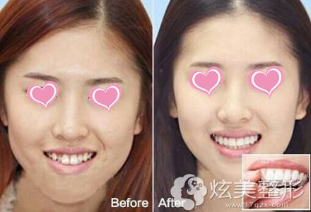 伊莱美整形专家李庆做牙齿矫正案例